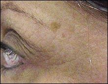szemölcsök eltávolítás előtt és után a hpv vakcina megszünteti a bőrrákot