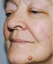 Öregségi szemölcs képek