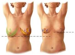 Emlőkisebbitő műtét
