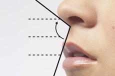 Az orrplasztika az orr alaki hibáit javító műtéti beavatkozás 0763062f1a