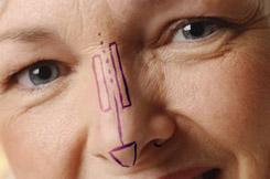 Orrplasztika. A korrekciós orrműtétet fiatal korban csak a növekedés  befejeződése után szabad végezni! A műtét végzésének alsó korhatára  általában 18 év. b0aa4edc70