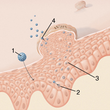 schistosomiasis organizmus