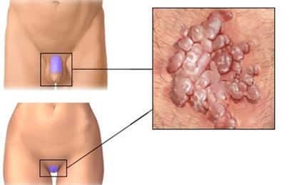 a giardia fertőzés tünete
