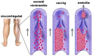 az alsó végtagok varikózisának kezelése műtét nélkül