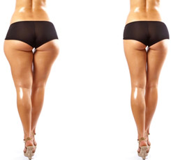 zsírleszívás és visszér az alsó láb erysipelái visszérrel